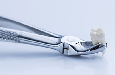 tooth and extraction tool