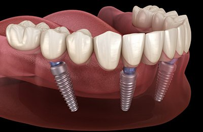 diagram of dental implants supporting a full denture on bottom arch