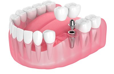 Implant-retained bridge supporting two joined artificial teeth