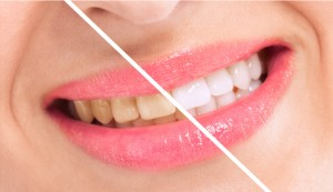Restore your smile with professional teeth whitening in Brownstown.