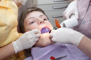 boy mouth open receiving dental sealant