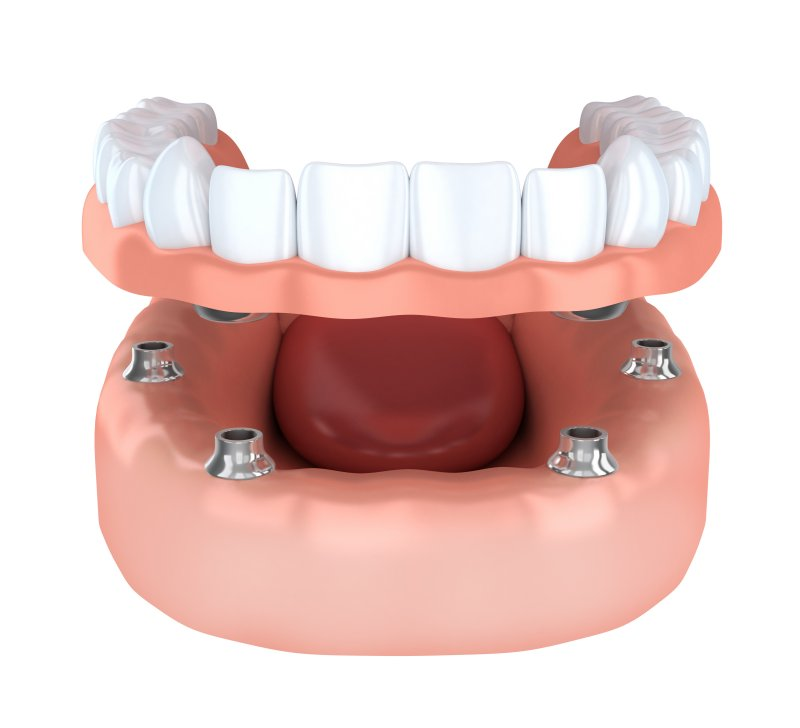 a digital image of an implant denture and six posts on the lower arch